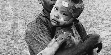 A Vietnamese child, body completely covered with burns from a Napalm bomb, is held by father after rescue from Vietnamese village near the Cambodian border, March 19, 1964. The child was found in a plain of reeds after Vietnamese Air Force bombers strafed the village, where Communist Viet Cong guerrillas sought to hide among innocent victims. (AP Photo/Horst Faas)