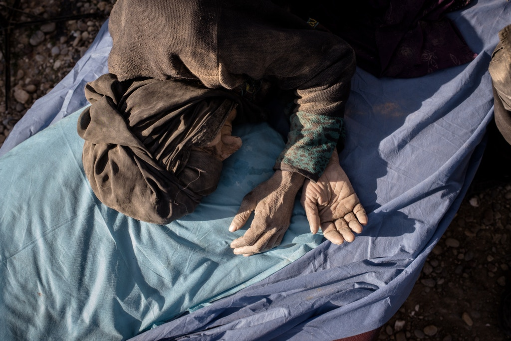 An injured civilian lies on a stretcher at a clinic south of Mosul, Iraq on Feb. 23, 2017.