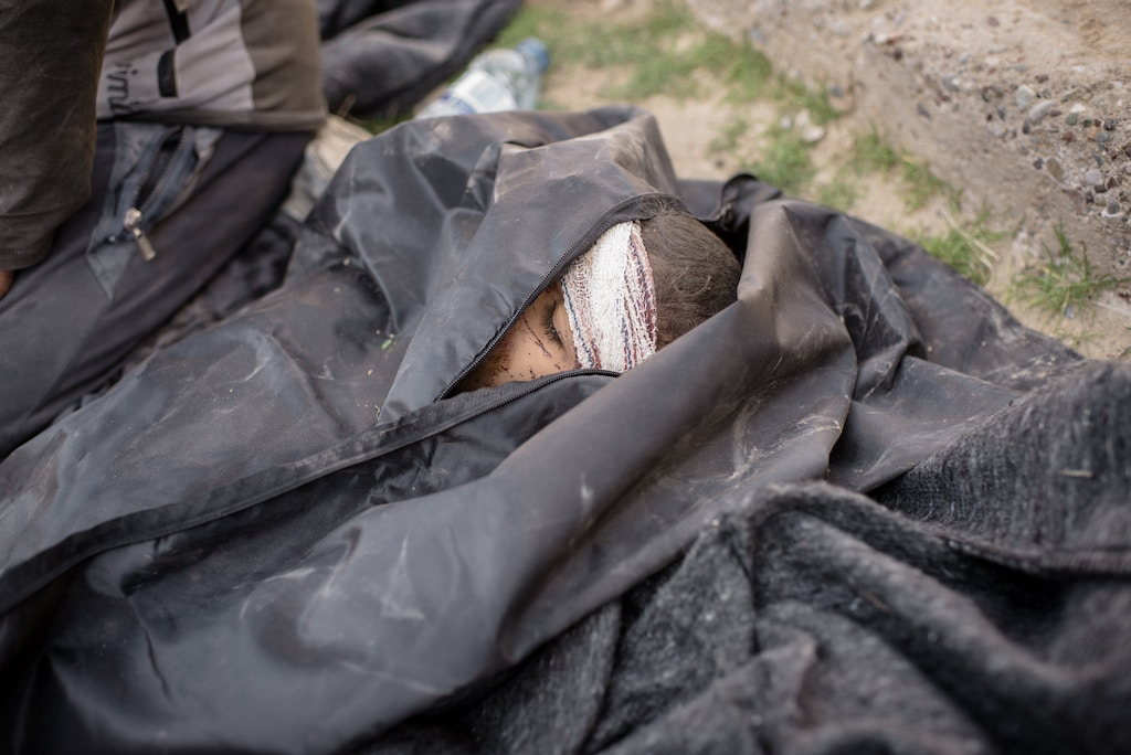 A dead child lies in a body bag at a clinic south of Mosul, Iraq on Feb. 23, 2017.