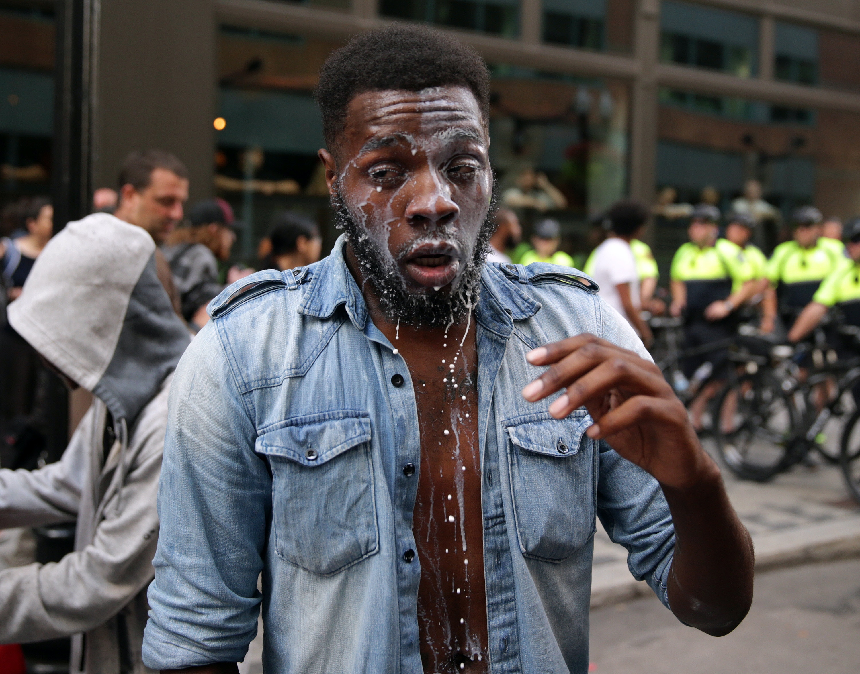 "BOSTON - AUGUST 19: A protester drips of milk after being maced on Washington Street in the tense situations that broke out following the ""Boston Free Speech"" rally and counter protest in Boston on Aug. 19, 2017. (Photo by Jonathan Wiggs/The Boston Globe via Getty Images)"