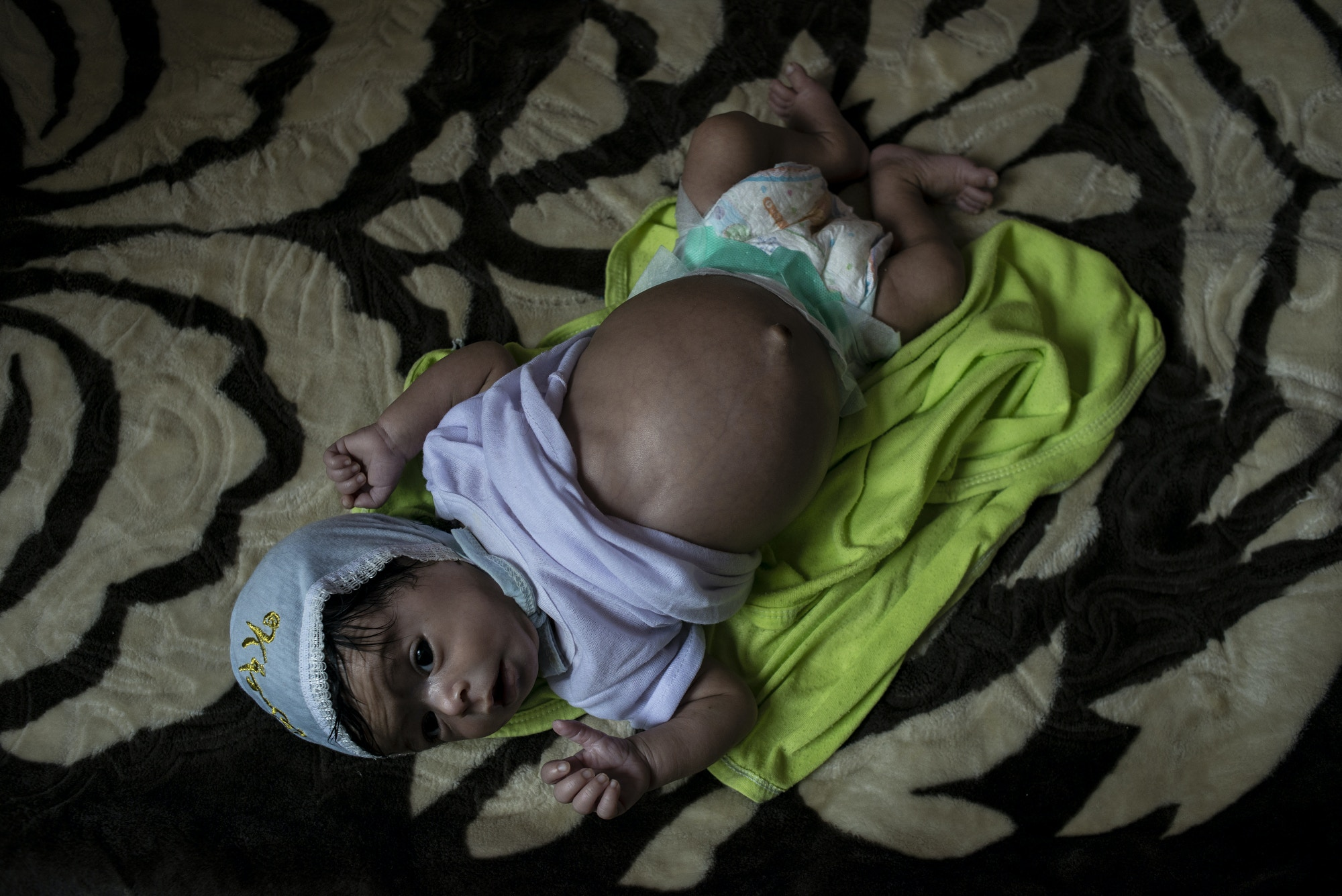 Bushra, 9 months old, lays on a bed with a belly bloated from electrolyte imbalance and malnutrition on May 4, 2018 at Sabaeen Hospital in Sana'a, Yemen.