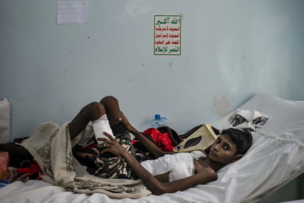 Hussein Hasan lays in bed on May 6, 2018 at Jumhuri Hospital in Hajjah, Yemen. Hussein was at the wedding when it was hit by an airstrike; he sustained severe abdominal and chest trauma and spent 10 days in intensive care.