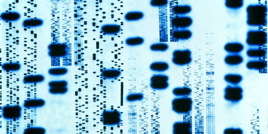 DNA sequences. Computer artwork of an autoradiogram of DNA (deoxyribonucleic acid) sequences. A close up view of a sequence (also known as the DNA fingerprint) is superimposed in the foreground. The sequence is four rows of irregularly spaced black bands. A DNA sample can be taken from body fluids such as blood, and body tissues. The DNA is then fragmented with enzymes to form the banding pattern. The bands represent the positioning of the base pairs on the DNA molecule. This banding makes up the genetic code in the form of genes which is unique to every person.