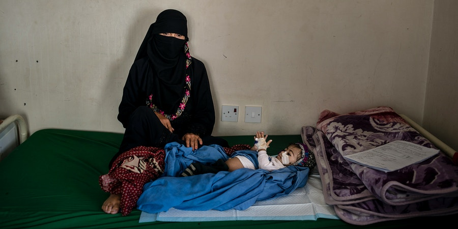 Kafaya, 6 months and severely malnourished, lays in bed with her mother on May 7, 2018 in Bani Mansur, Yemen. Nearly all the mothers in the Bani Mansur malnutrition center, supported by WHO are farmers who rent land, and can barely make ends meet.