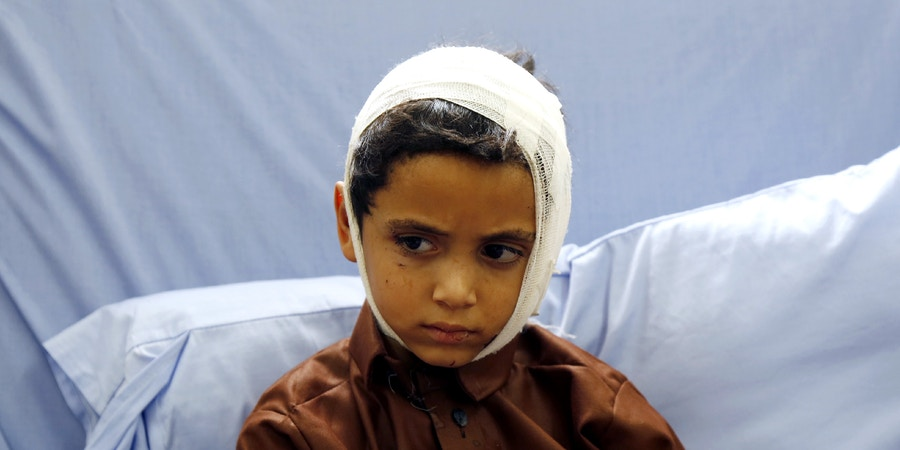 SANA'A, YEMEN - AUGUST 12:  A Yemeni child receives medical treatment after he was injured by an airstrike hitting a bus he was riding on earlier this week, on August  12, 2018 at a hospital in Saada, Yemen. (Photo by Mohammed Hamoud/Getty Images)