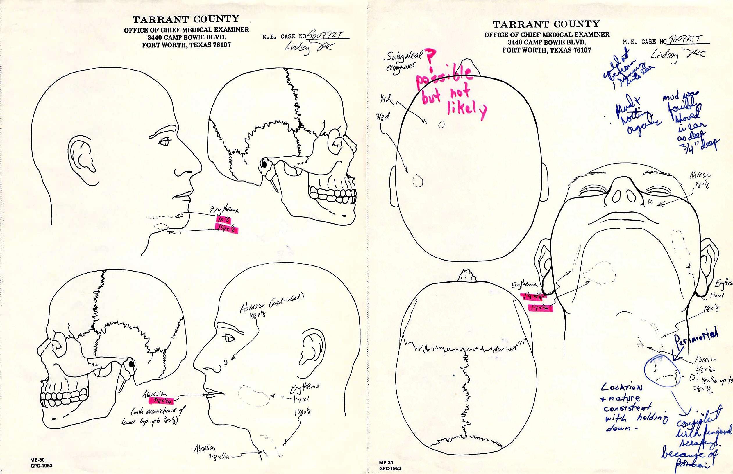 autopsy_diagrams-1536279150