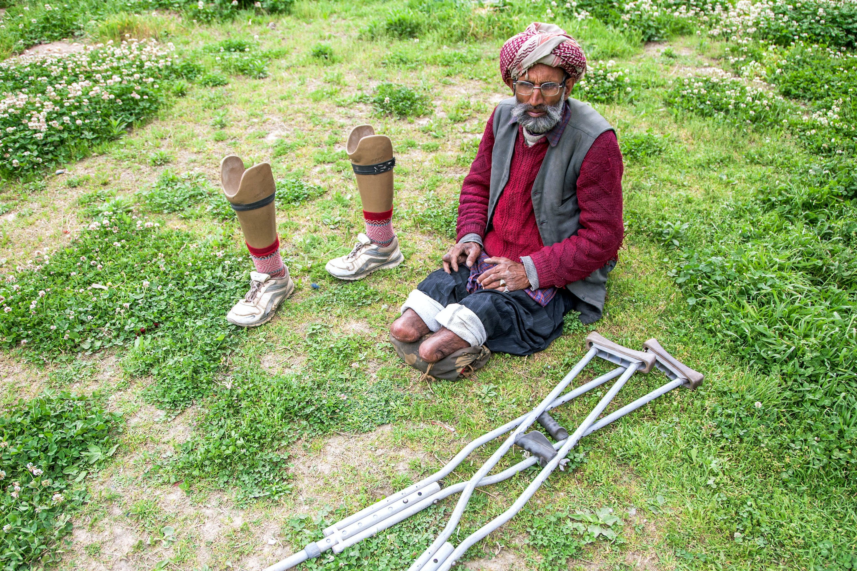 SRINAGAR, KASHMIR, INDIA - AUGUST 08: Qalander Khatana, a torture victim poses with his amputated and prosthetic legs on August 8, 2016 in Srinagar, the summer capital of Indian administered Kashmir, India. 45-year old Qalendar Khatana from Kalaroos area of Kupwara district says he was picked up from his home by the 36 Batallion of India's Border Security Force (BSF) on December 15, 1990. ' They said we just want to ask you some questions,' Qalendar says . At a nearby BSF camp, Qalendar says he was tortured for two days. ' The BSF accused me of sheltering militants. I was just a farmer. I didn't know any militants but they wouldn't believe me,' he says. After six months of continuous torture including severe beating and electric shocks to genitals and other body parts in different BSF camps, Qalendar says he was shifted to the notorious ' Papa 2' interrogation center in Srinagar, where the BSF hacked off both his legs. He was then shifted to the Kot Balwal Jail in Jammu, where he 'rotted for the next four years, without any medical care.' Qalendar says due to the torture he has partially lost his eyesight and can barely sleep at night. (Photo by Yawar Nazir/Getty Images)