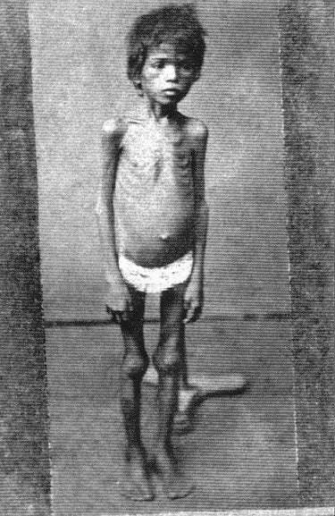 Imagem de uma criança faminta na seca de 1877.