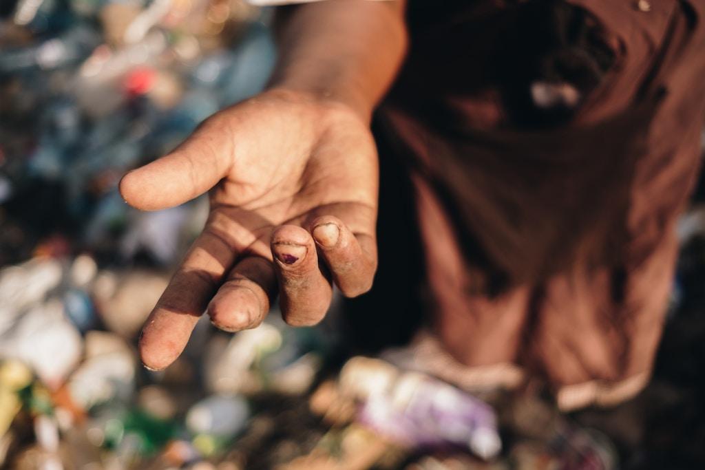 Miriam Nyambura mostra os cortes nos dedos ao peneirar vidro quebrado no depósito de Dandora.