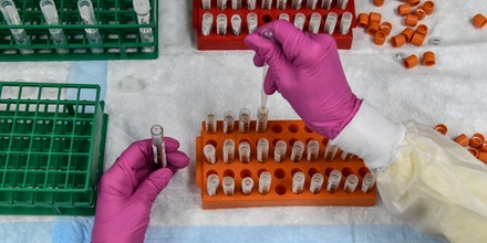 A lab technician sorts blood samples for COVID-19 vaccination study at the Research Centers of America in Hollywood, Florida on August 13, 2020.