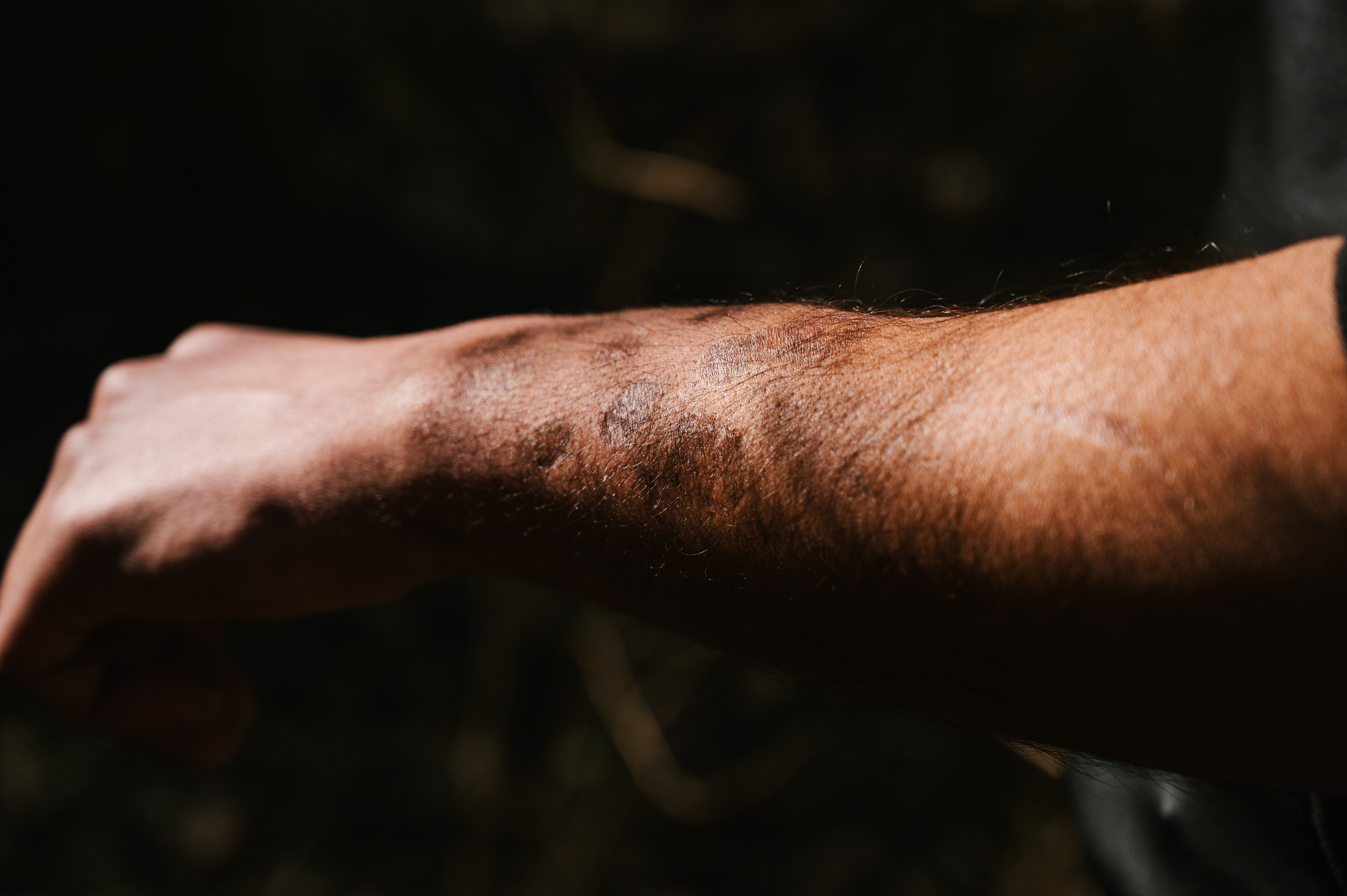 Fady shows the cigarette burns on his left arm.