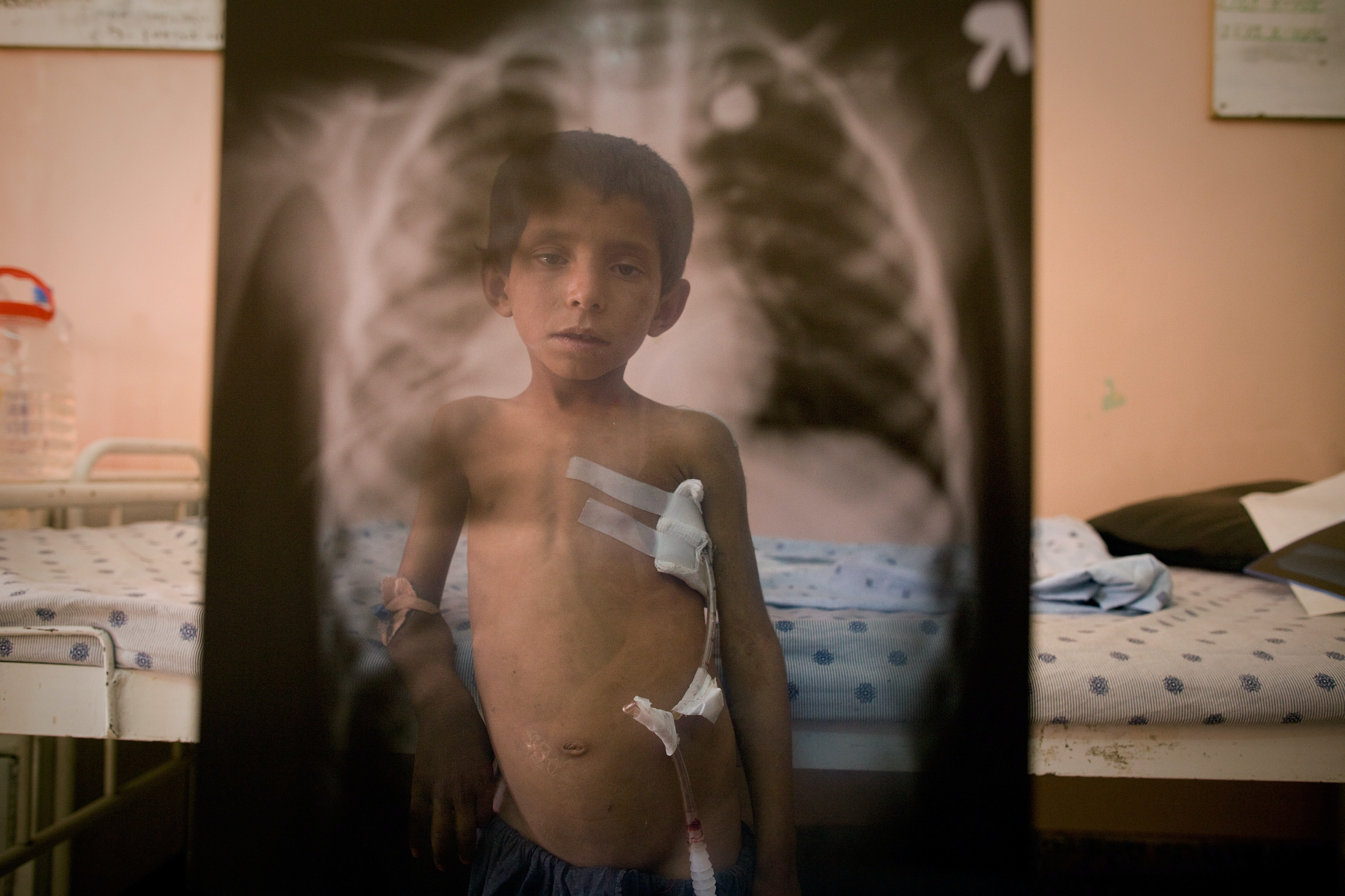 KANDAHAR, AFGHANISTAN - OCTOBER 13: Seven-year-old Attiullah poses in front of an x-ray of the bullet that entered his back coming out through his chest, as he stands by his bed at Mirwais hospital October 13, 2009 Kandahar, Afghanistan. According to his grandfather, Attiullah was shot by U.S forces as he was walking in the field near his home in the village of Sangissar, Panjway district watching the family's flock of sheep. The soldiers apparently shot at a vehicle that was supposedly Taliban and the boy got hit accidently. Mirwais hospital in Kandahar city is the largest regional hospital in the area, supported by the ICRC and the Afghan government it caters to most of the war wounded in the most hostile part of the country. A recent U.N. report has described 2009 as the deadliest year in terms of civilian casualties in Afghanistan ever since the start of the U.S.-led war against Taliban in the country. In his latest report presented to the Pentagon, Gen. Stanley McChrystal, the U.S. top commander emphasized the need for winning the hearts and minds of the Afghans. The Taliban are now staging suicide attacks and IED blasts in densely populated areas to create a bigger impact as more of Afghan's war wounded hit the headlines. (Photo by Paula Bronstein/Getty Images)
